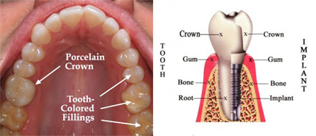 Cosmetic Dentistry and Dental Implant Diagram